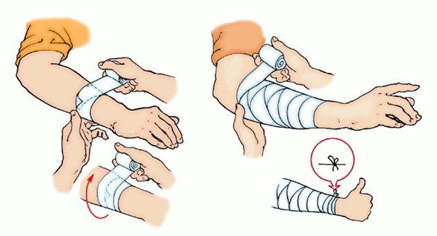 При ранения как сделать первую помощь