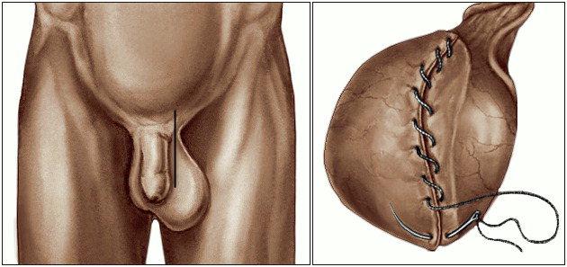 Уменьшение яичка в результате часто мастурбации