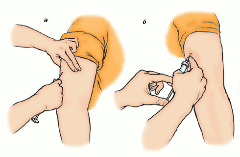 Как сделать подкожную инъекцию в животе