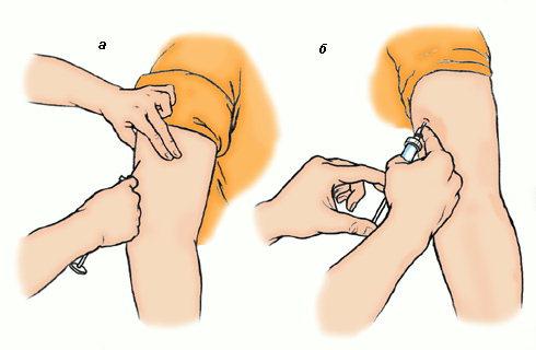 Как правильно сделать инъекцию подкожно